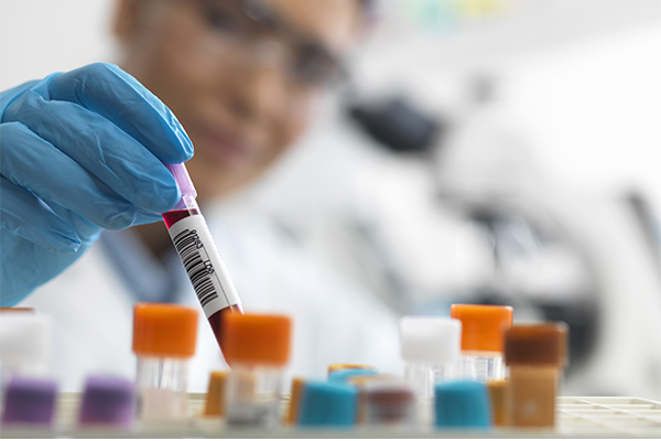 Pre-Employment Drug Tests at Concentra